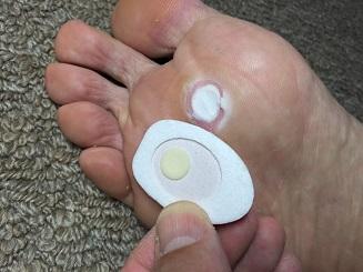 真ん中の丸い部分が薬剤。これを患部に合わせて貼ります。数枚使ったあとなので患部は真っ白。